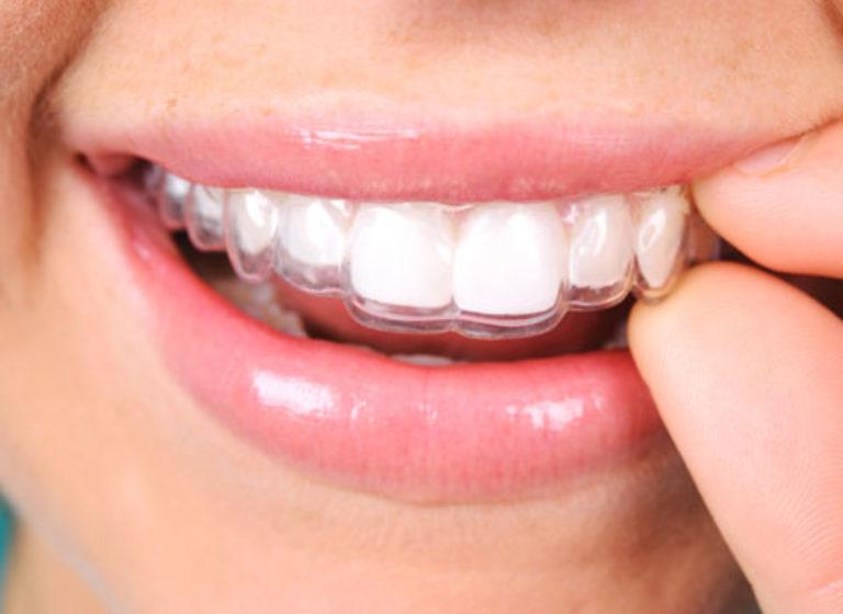 ortodonzia-invisibile-stomatologico-Melzo-MILANO